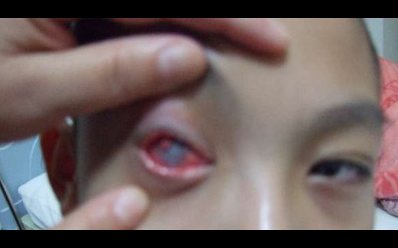 小男孩調皮拿了「這東西」對同學的眼睛惡作劇後,一輩子失明的結果是父母們都要注意的一課!  -