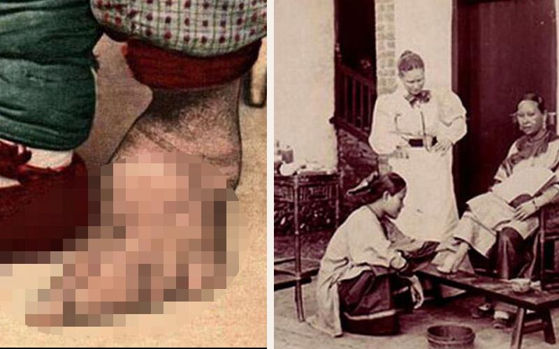 中國女人裹小腳的悲慘照片曝光!十個趾頭都扭曲併攏,形狀模糊!珍貴的歷史照片流出!實在太令人震懾了...!!  -